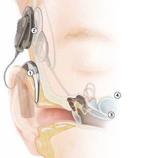 en_general_cochlearimplant_howitworks_hearingwithacochlearimplant_300x320